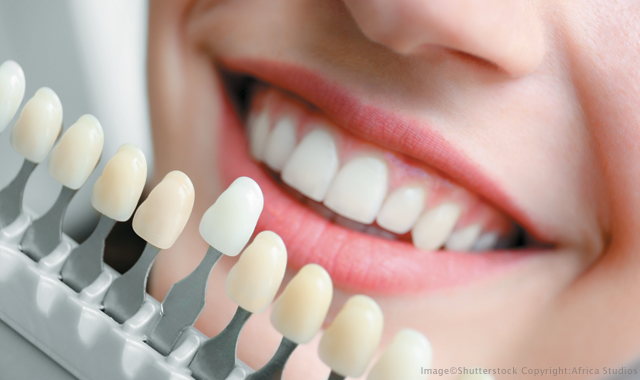 Benefits of opting for cosmetic dentistry